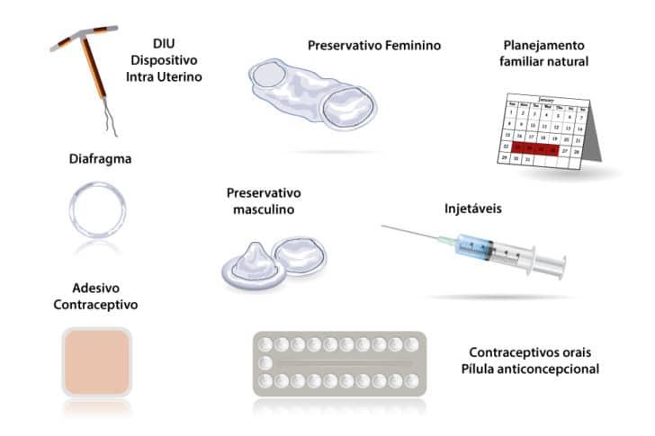 Ilustração dos diversos métodos contraceptivos